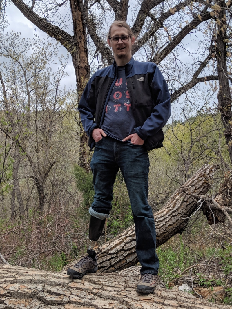 Right below-knee amputee proudly standing atop a fallen log, with prosthesis showing.